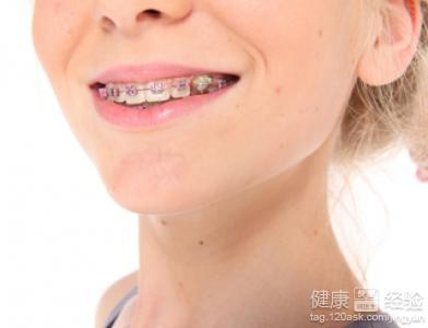 每个人都希望有一口漂亮的牙齿,这样的话笑起来也会很好看,很多人
